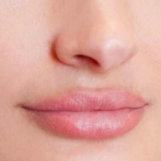 Personalized hair removal services on the lips At Rescue Spa